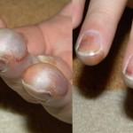 Frostbite-Fingertips-Dan-Darley