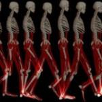 اختلالات-حرکتی-300x160