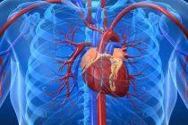 Heart-Disease_2