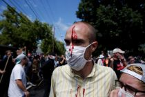 A man is seen with an injury during a clash between members of white nationalist protesters against a group of counter-protesters in Charlottesville