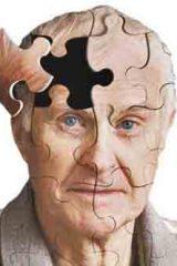 علایم-آلزایمر-1